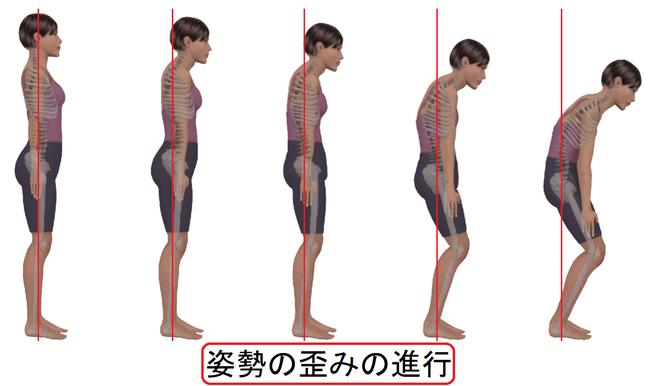 姿勢の歪みの進行 イメージ画