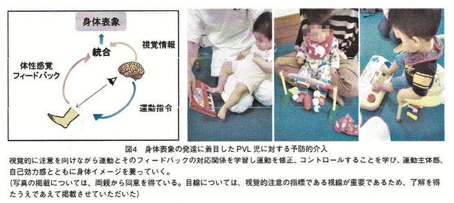 身体表象の発達に着目したPVL児に対する予防的介入
