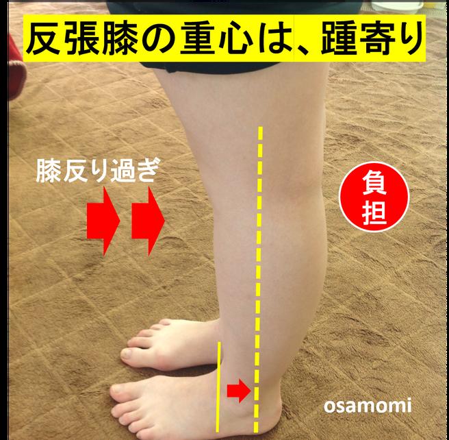 反張膝の注意点。足膝専門、昭島市のオサモミ整体院。