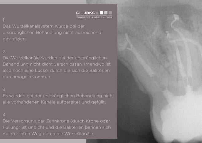Bild: Schmerzen nach Wurzelbehandlung, Zahnarzt Hamburg, Dr. Jacob, Dr. Jakob, Wurzelbehandlung, Zahnschmerzen