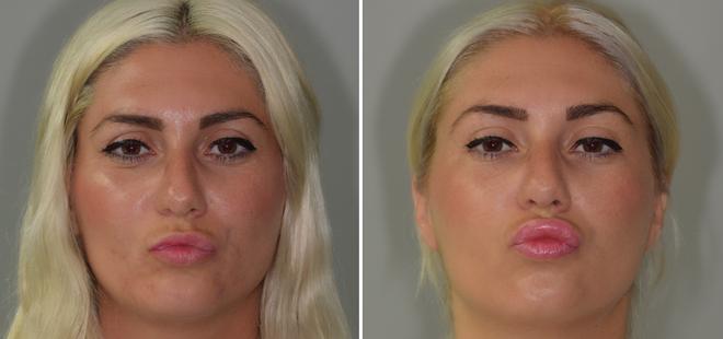 Augmentation lèvres acide hyaluronique