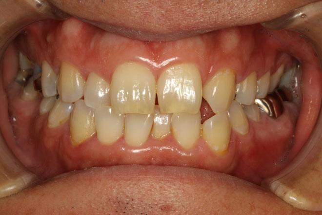 歯並び治療
