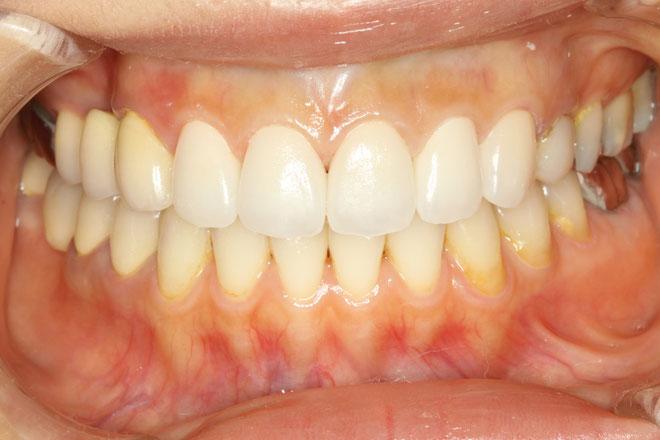 前歯5本のスペシャルオールセラミック