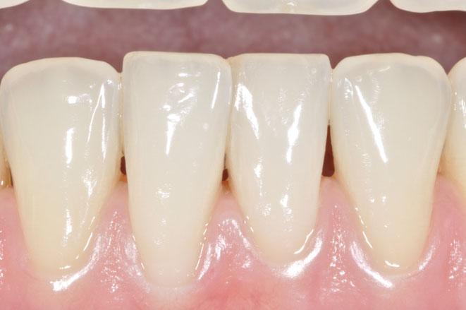 gesundes Zahnfleisch ist der Rahmen für schöne Zähne