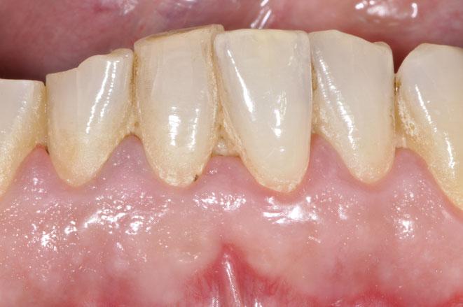 Zahnbeläge wie Plaque und Zahnstein sind Ursache für Zahnfleischentzündung