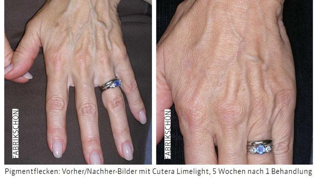 Laserbehandlung der Hände