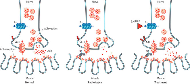 Pathophysiology of LEMS and effects of symptomatic treatment