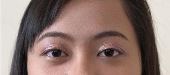 Những cách nào khắc phục được mắt ba mí? C%C3%A1ch-n%C3%A0o-kh%E1%BA%AFc-ph%E1%BB%A5c-%C4%91%C6%B0%E1%BB%A3c-m%E1%BA%AFt-ba-m%C3%AD-1