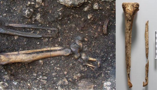 squelette amputé autriche