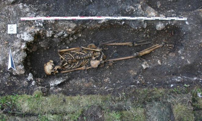 squelette prothèse autriche