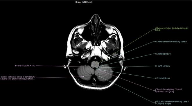 Myelencephalon, Medula oblongata, Lateral aperture, Fourth ventricle, Choroid plexus, Tonsil of cerebellum, Cisterna magna MRI