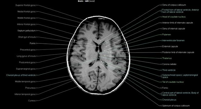 Genu of corpus callosum, Head of caudate nucleus, Genu of internal capsule, Putamen, External capsule, Thalamus, Third ventricle, Tail of caudate nucleus, Fornix, Choroid plexus, Splenium of corpus callosum MRI