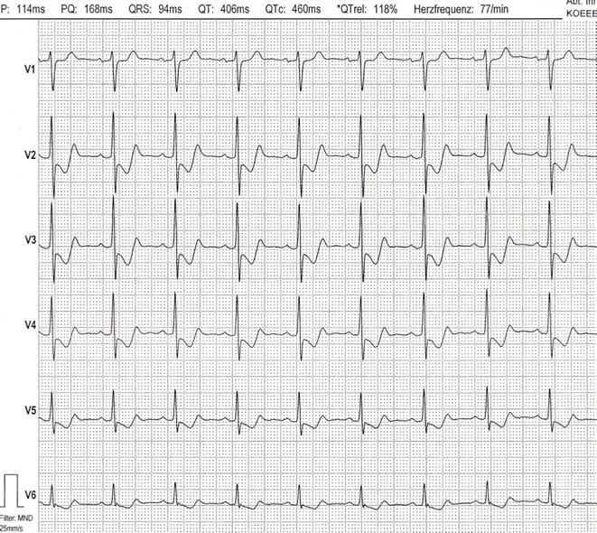 EKG 2