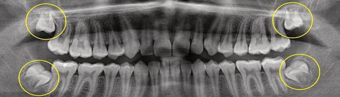 Röntgenaufnahme von retinierten Weisheitszähnen im Unterkiefer