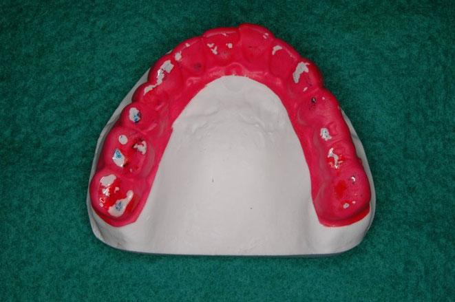 咬合治療前の歯ぎしりの状態