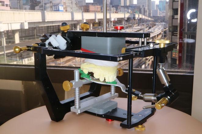 咬合器という機械を用いて噛み合わせの接触を確認します。