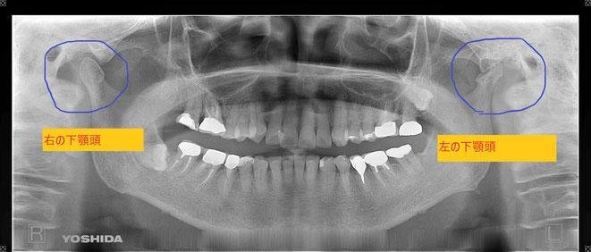 顎の関節が変形・吸収している方のレントゲン写真