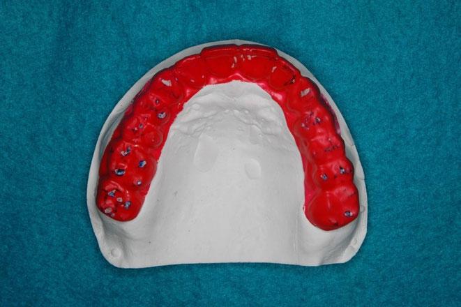 咬合治療後の歯ぎしりの状態
