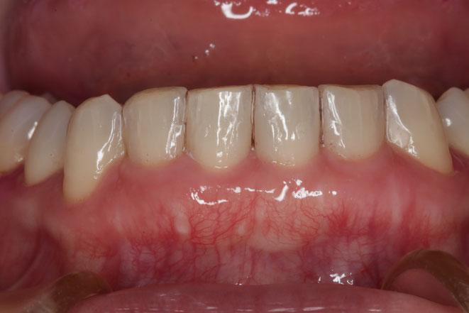 ダイレクトボンド法と歯茎再生を行ったケース