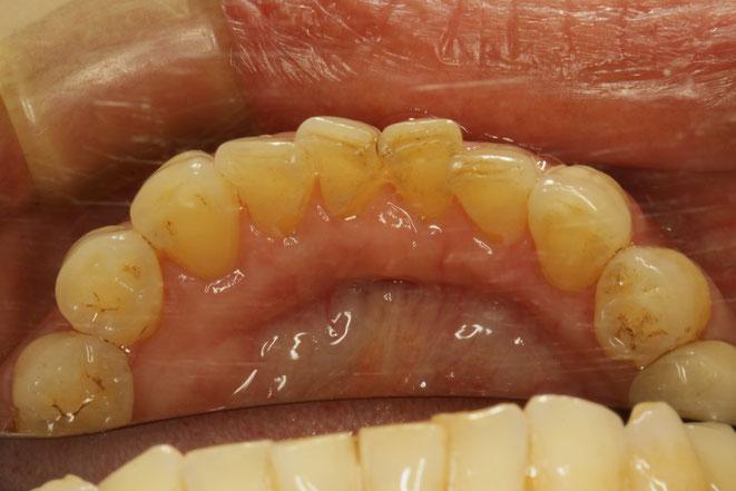 下の前歯の裏側の歯茎下がってしまったケース