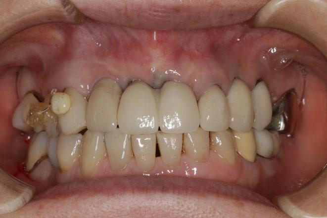 インプラント部分の歯茎再生