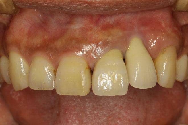 インプラント周囲炎で歯茎が下がってしまったケース