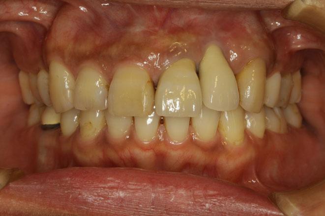 インプラントをしたのに歯が長くて見た目が悪い