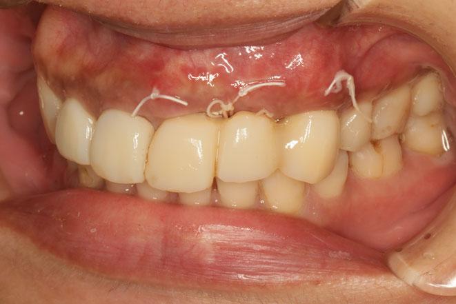骨の再生治療後に歯茎の再生も行いました。