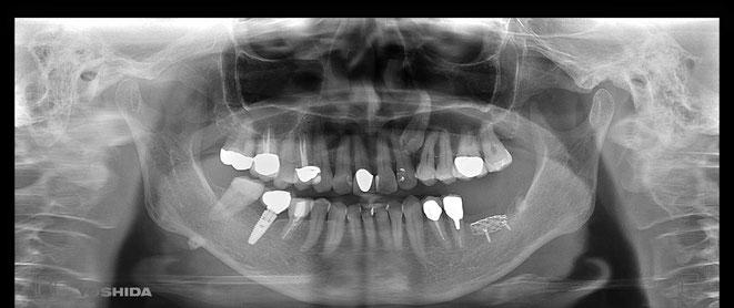 奥歯のインプラント周囲炎後のGBR 増骨治療