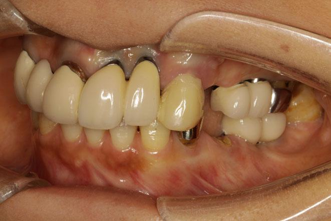 インプラントの歯茎の退縮