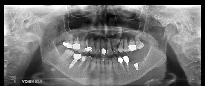 奥歯のインプラント周囲炎後のGBR 増骨治療を行い、インプラントを埋入しました。