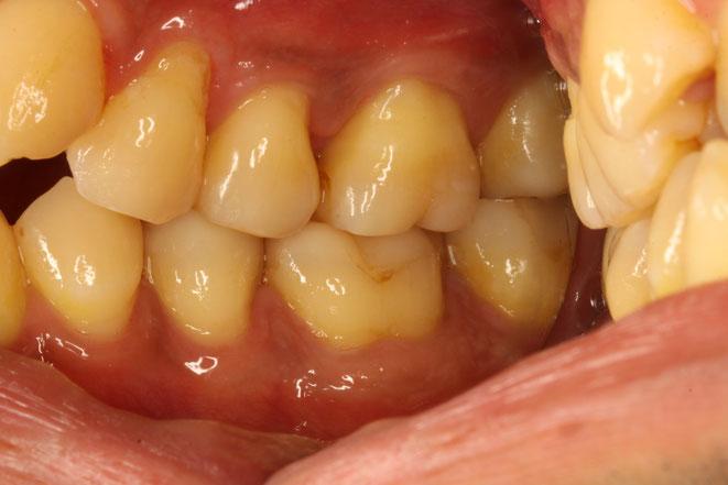 歯軋りで歯茎が下がるかもしれません。