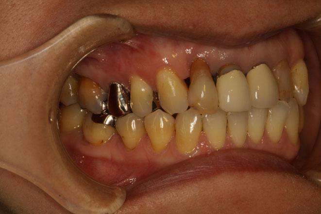 歯軋りが歯周病が悪くなる原因か?