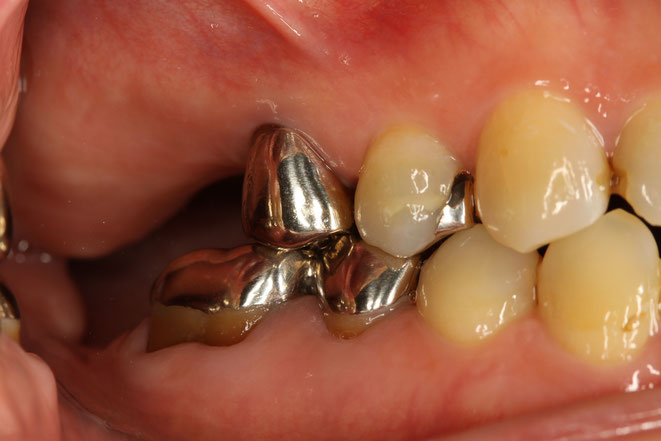 歯ぎしりの力で歯の側面が削れてしまった状態をアブフラクションと言っています。