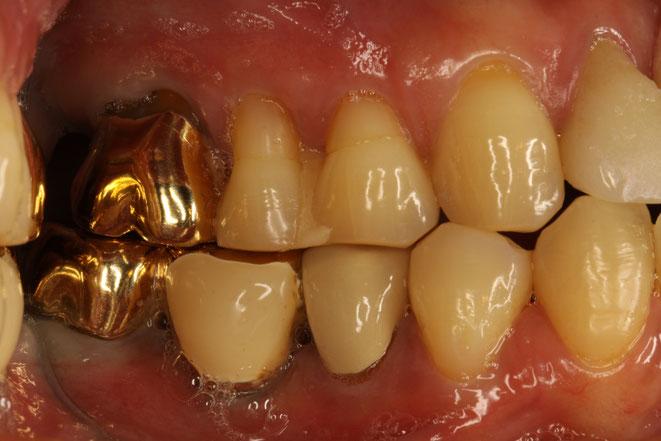 歯軋りで歯茎が下がる?