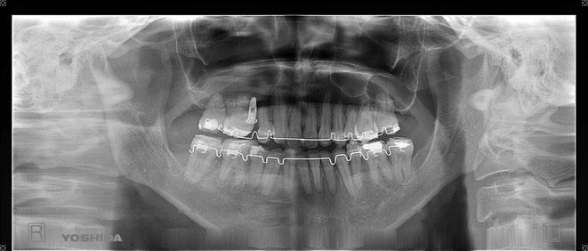 下顎頭の吸収 31