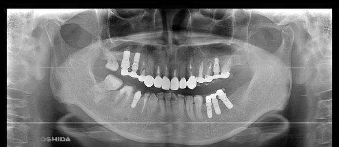 下顎頭の吸収 2
