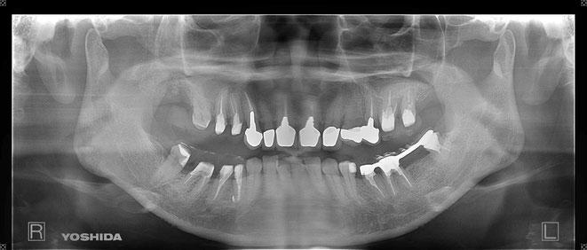 下顎頭の吸収 4