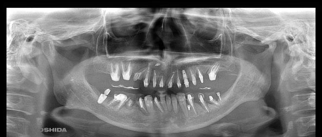 下顎頭の吸収 6