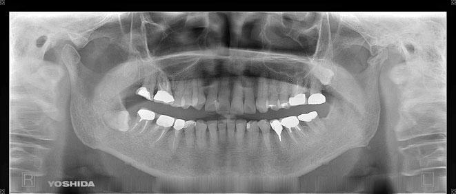 下顎頭の吸収