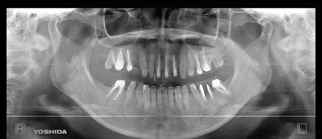 下顎頭の吸収 9