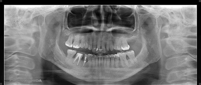 下顎頭の吸収 30