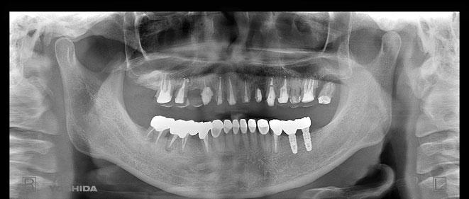 下顎頭の吸収 11