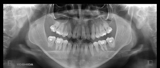 下顎頭の吸収 34