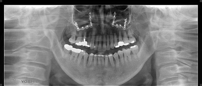 下顎頭の吸収 10
