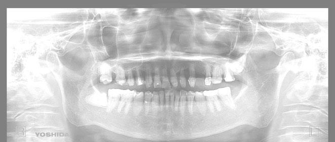 下顎頭の吸収 28