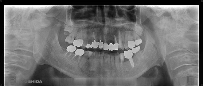 下顎頭の吸収 12