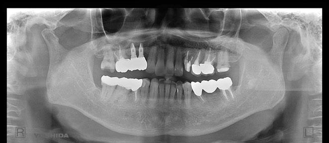 下顎頭の吸収 8