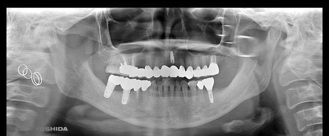 下顎頭の吸収 5