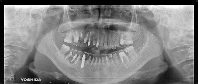 下顎頭の吸収 19
